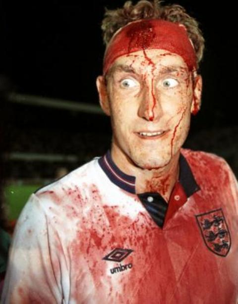 Paul Ince and Terry Butcher bleed for England